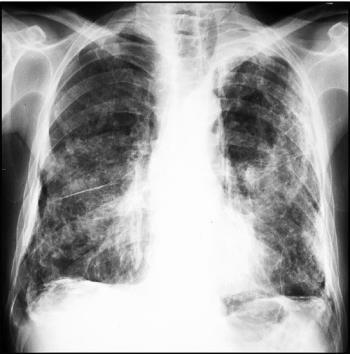 pulmón con asbestosis
