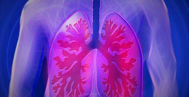 asbestosis pulmonar síntomas