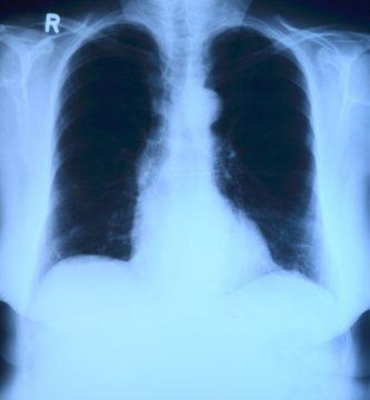 asbestosis rx