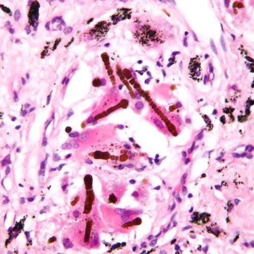 Cuerpos de asbestosis asbesto o ferruginosos