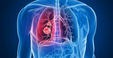 asbestosis cáncer