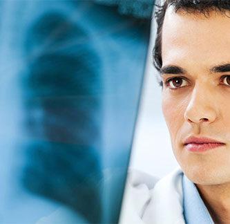 causas de asbestosis
