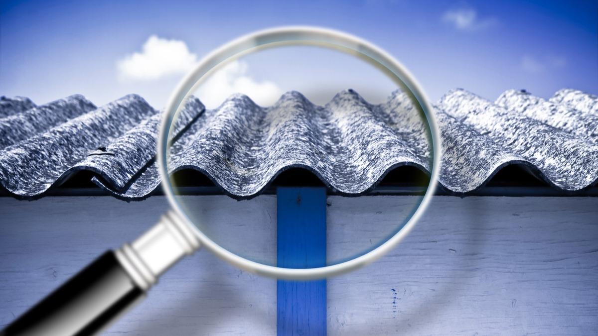 Asbestosis Definición médica wikipedia   🧡¿Que es asbestosis?