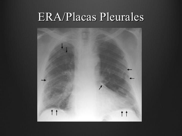 Asbestosis y placas pleurales