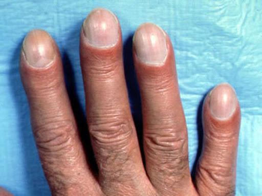 dedos de asbestosis