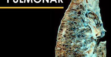 asbestosis y fibrosis pulmonar