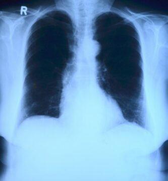 radiología de asbestosis