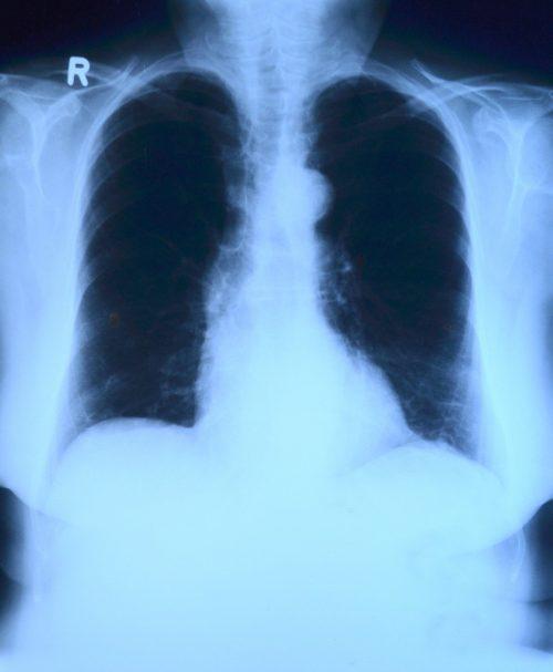 Radiología como método de diagnóstico 🧡 de Asbestosis