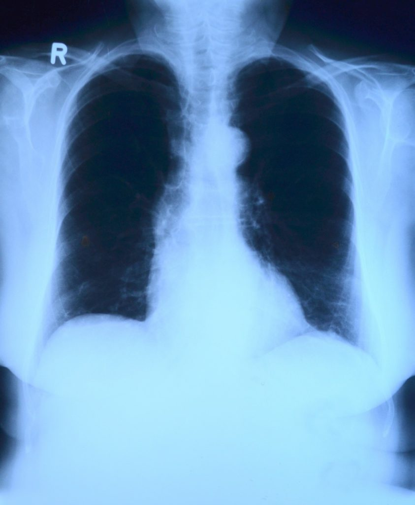 mesotelioma peritoneal maligno