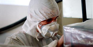 Asbestosis Periodo de Latencia