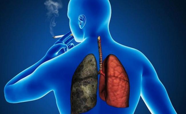 Trasplante pulmonar por asbestosis