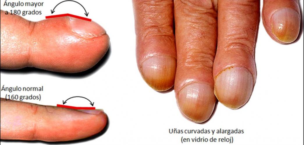 Acropaquia o dedos en palillo de tambor 🧡 causas