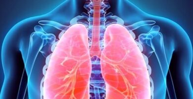 asbestosis sintomas