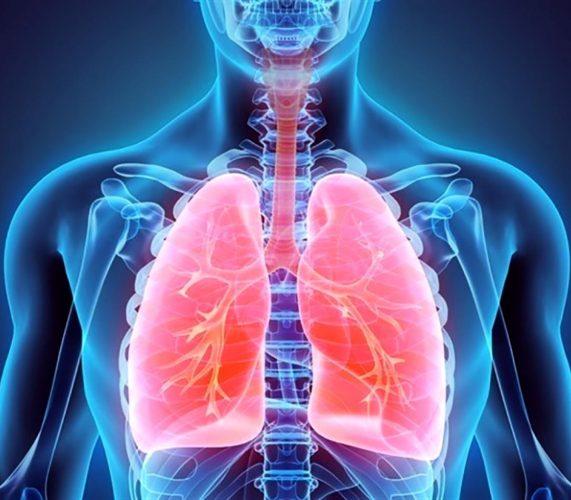 Asbestosis síntomas y  signos   🧡  por inhalación de asbesto
