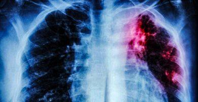 asbestosis y tuberculosis