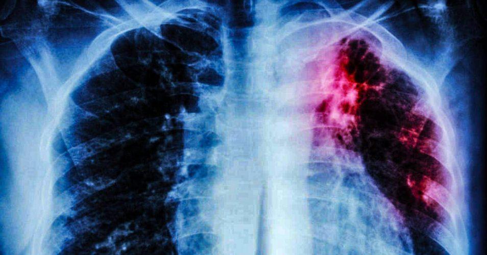 La Asbestosis (neumoconiosis) 🧡 predispone a la tuberculosis