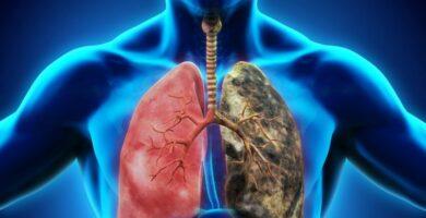efecto de la asbestosis en los pulmones