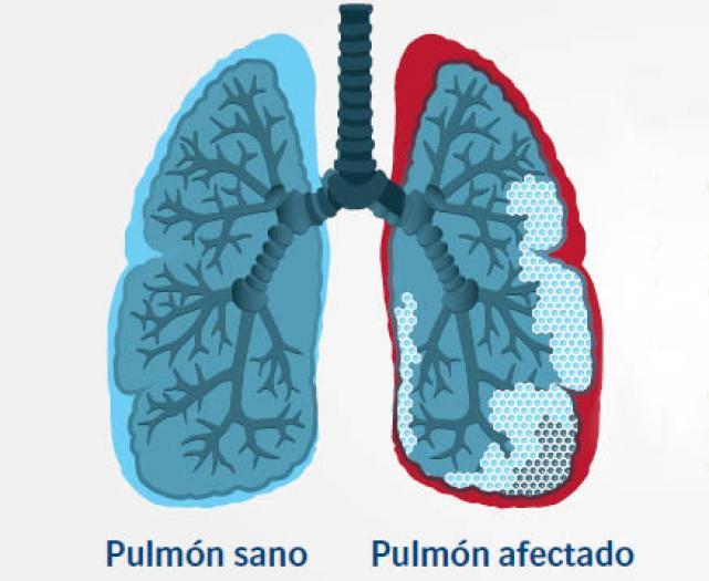 pulmones dibujo