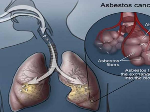 asbesto como agente cancerígeno