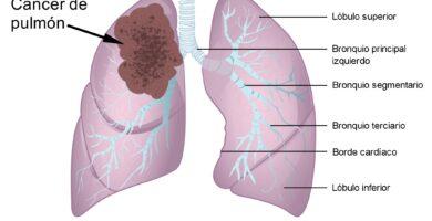 Asbestosis y Cáncer Pleural Maligno o Mesotelioma Pleural