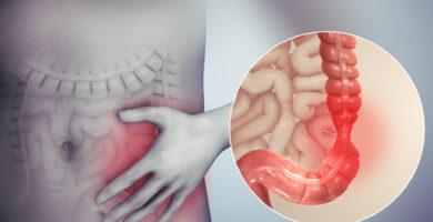 asbesto y cáncer de colon